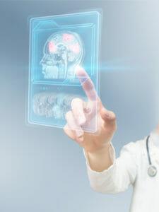 APEX Brain Centers | Asheville NC | Functional Neurology